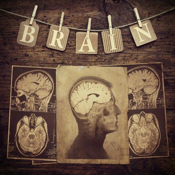 Brain retro xray