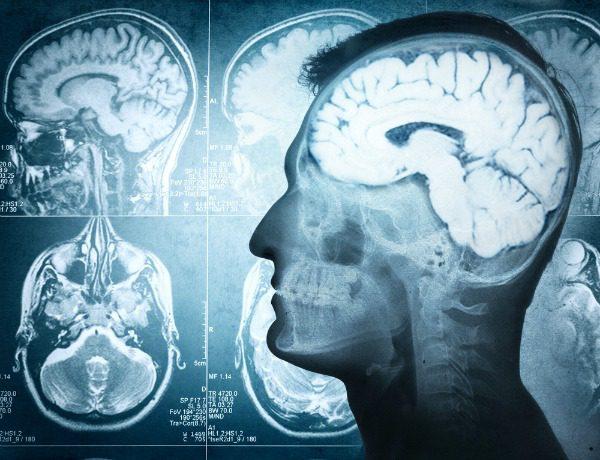 Brain x-rays